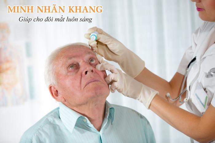 Thuốc nhỏ mắt là một giải pháp khá hiệu quả trong điều trị bệnh glôcôm